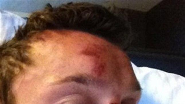 Sam Trickett postitas pärast peksasaamist endast Twitterisse säärase pildi.