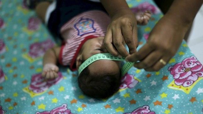 Kahekuune brasiillane Guilherme Soares Amorim sündis mikrotsefaaliaga