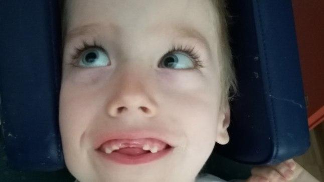 Ajukahjustusega sügava puudega poiss vajab eluspüsimuseks ravitoitu