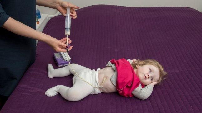 Nii käib lapse toitmine sondi kaudu. Pilt on illustratiivne.