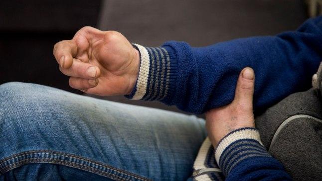 KAOTANUD KÕIK: 2003. aastal kaotas Ervin tööd tehes parema käe kaks sõrme ja ta tunnistati pärast seda osaliselt töövõimetuks. Uue hindamissüsteemi järgi jäi ta aga toetusest ilma ning on töötukassa hinnangul sada protsenti töövõimeline.
