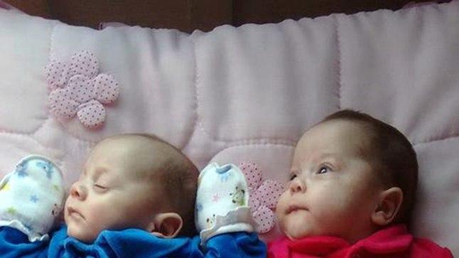 Arstide päästetud kaksikud.