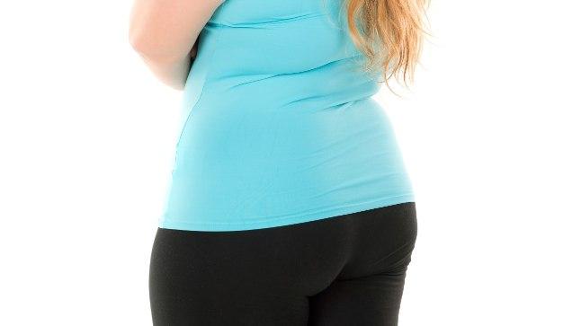 SALENENUD NAINE VIHKAB OMA KEHA: 140 kilo kaalunud naist jäi piinama hunnik lõtvunud nahka