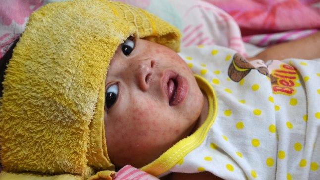 Фото иллюстративное. Ребенок, заболевший корью.