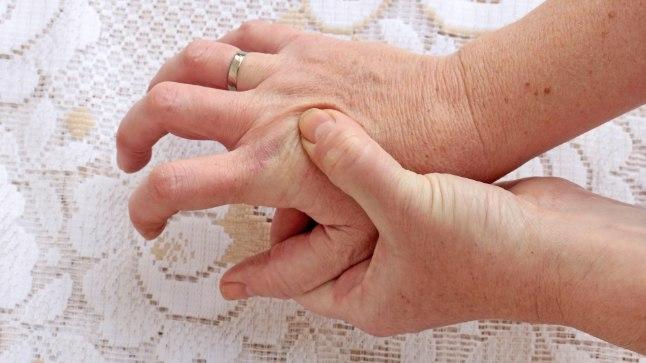 Kui käed värisevad pidevalt ja on asjata jäigad, siis võib kahtlustada Parkinsoni tõve olemasolu.