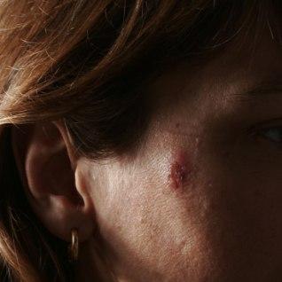 Kümme fakti melanoomist, mida sa peaksid ilmtingimata teadma