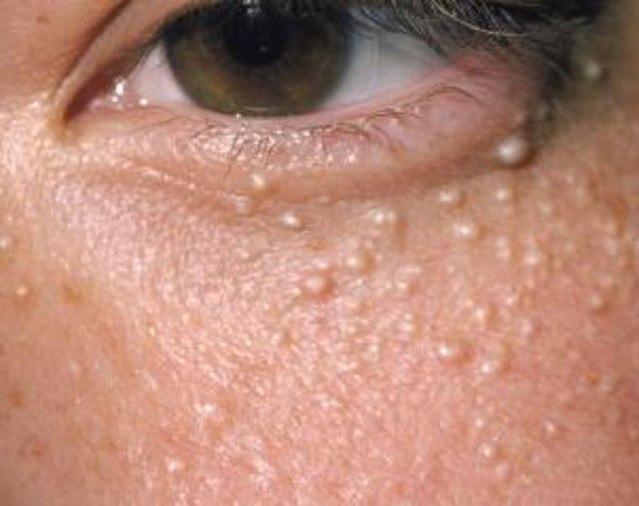 От чего образуются жировики на лице