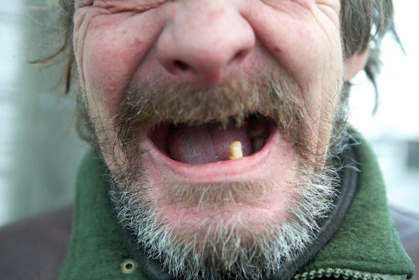 Hambapõletik võib hävitada lõualuu!