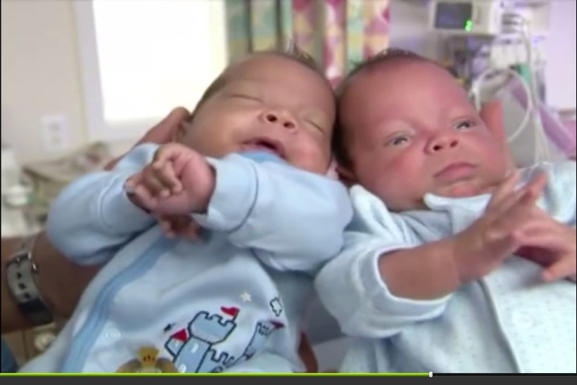 Üks kaksik sündis teisest 24 päeva hiljem