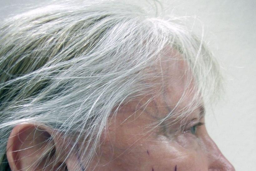 OOTA, KUI VANA SEE NAINE ON?! Pensionär on kulutanud iluoperatsioonidele üle 50 000 euro!