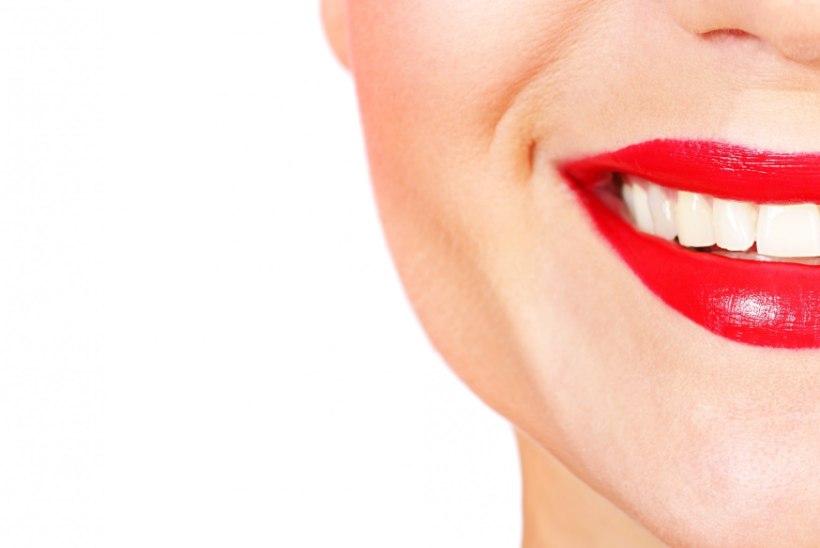 Mida teha, et huuled oleks kogu aeg terved ja ilusad?