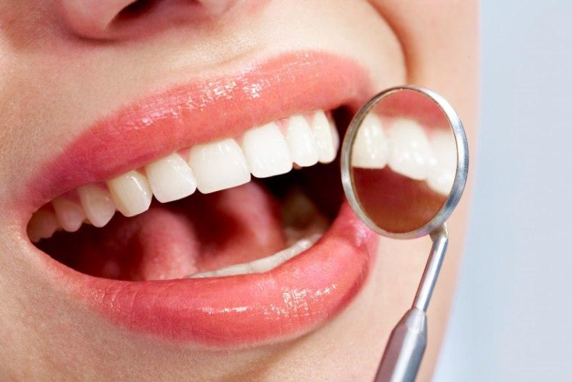 Kuidas saab hambaid valgemaks muuta?