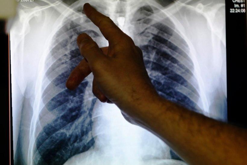 Soome ametikoolis avastati välistudengil tuberkuloos