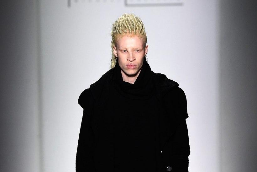 Kiusatud albiinost tippmodelliks