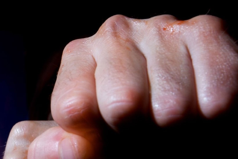 POLITSEI NÄDALAVAHETUS IDA-VIRUMAAL: pussitamine, kahtlased põletushaavad ja jalahoobid näkku