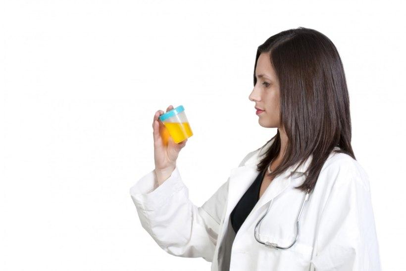 Mida räägib uriini värv su tervise kohta?