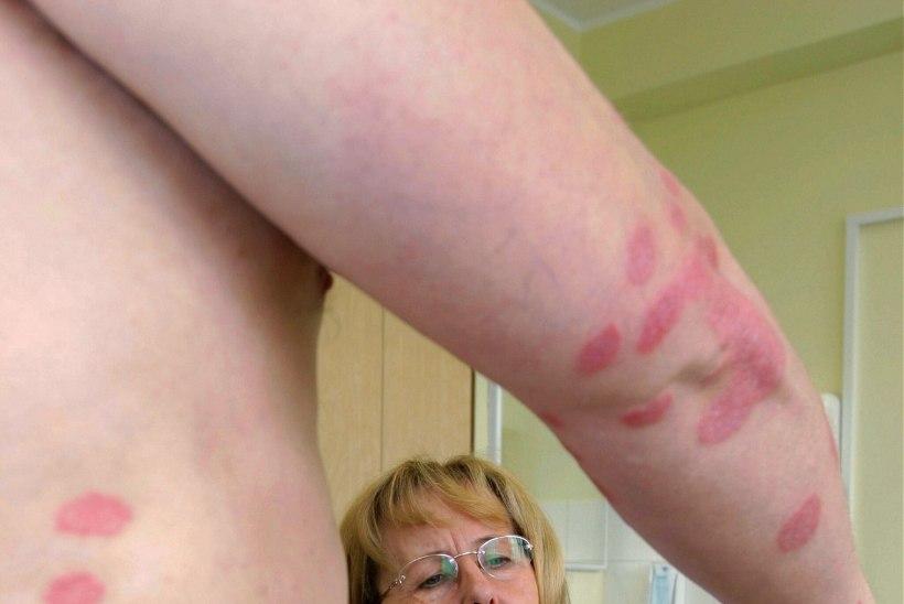 Kuidas tekivad nahainfektsioonid?