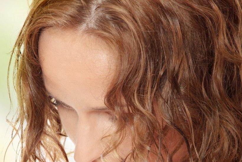 Noortel esineb luu- ja lihasvalusid järjest enam