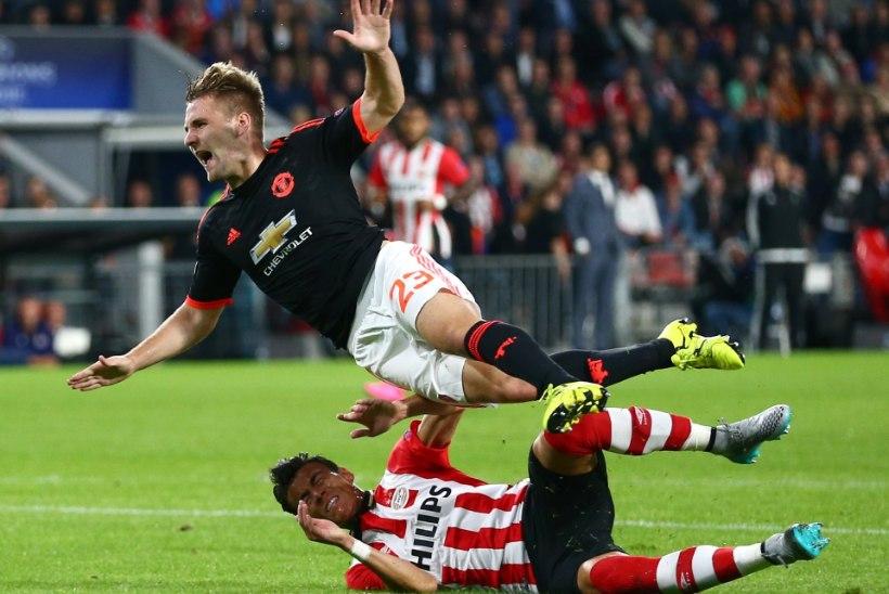 FOTOD | Manchester Unitedi mängijal murti Meistrite liiga avavoorus jalaluu