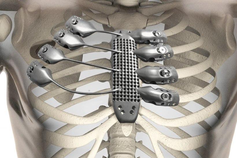 Varuosad, spetsiaalselt sulle: teadlased õpivad 3D-printeriga luid valmistama