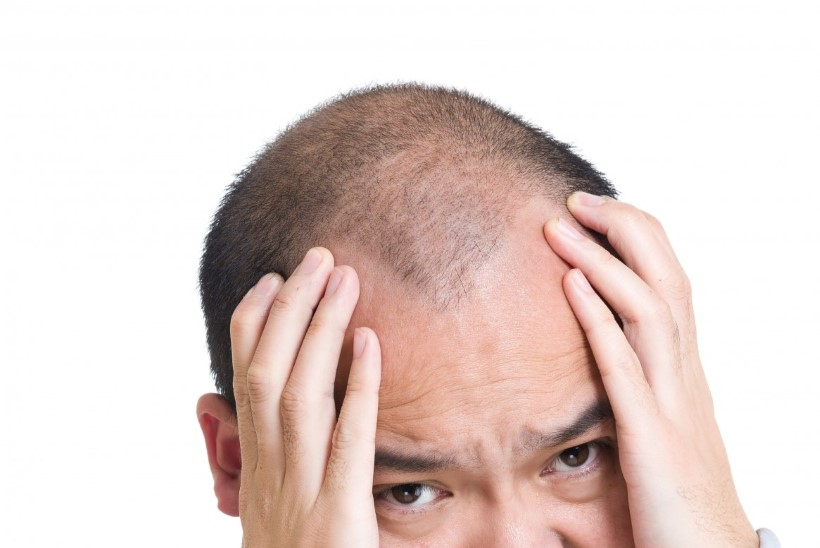 Miks juuksed oimukohtades (külgedelt) hõrenevad?