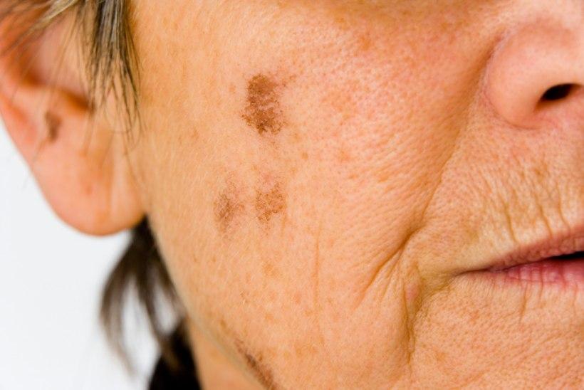 Kuidas vabaneda suvel nahale tekkinud pruunidest laikudest