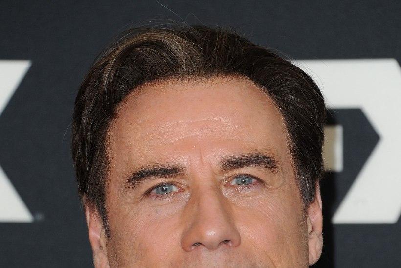 Kas juuksed on Travoltale pähe liimitud?!