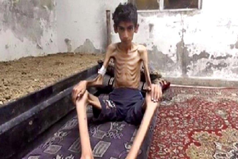 Näljahädas süürlased söövad rohtu