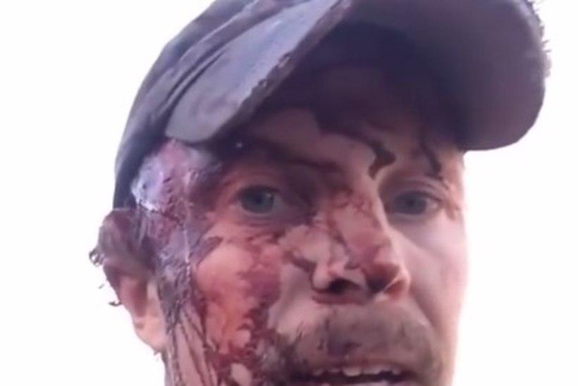 VIDEO | MEES, KES JÄI ELLU: grislikaru ründas matkajat - kaks korda!