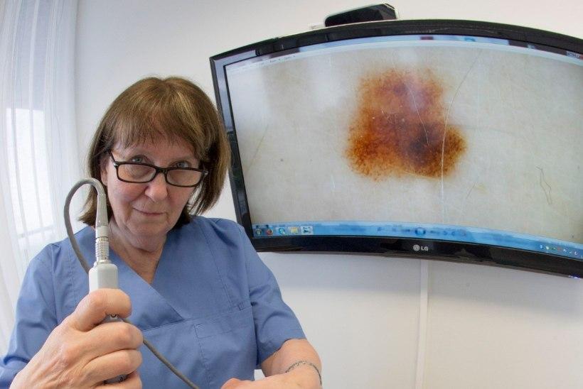 Melanoomi varase avastamisega tegelevat e-tervise ettevõtet arendatakse nüüd ka Saksamaal