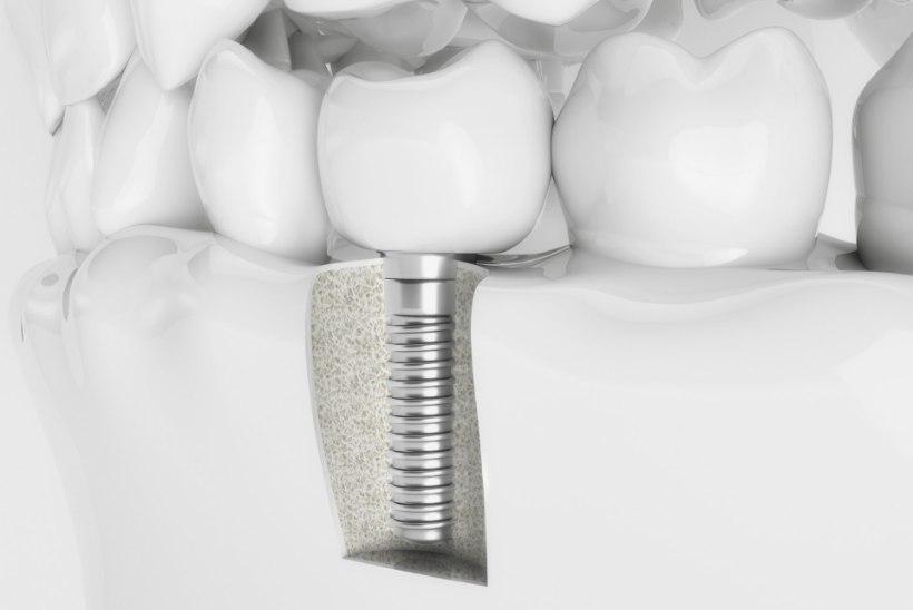 Hambaimplantaat - krõbe hind, kuid kaunis tulemus
