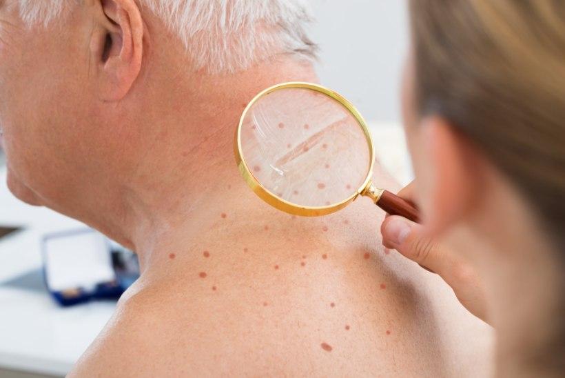 Loe, miks on üksikud inimesed nahavähist rohkem ohustatud
