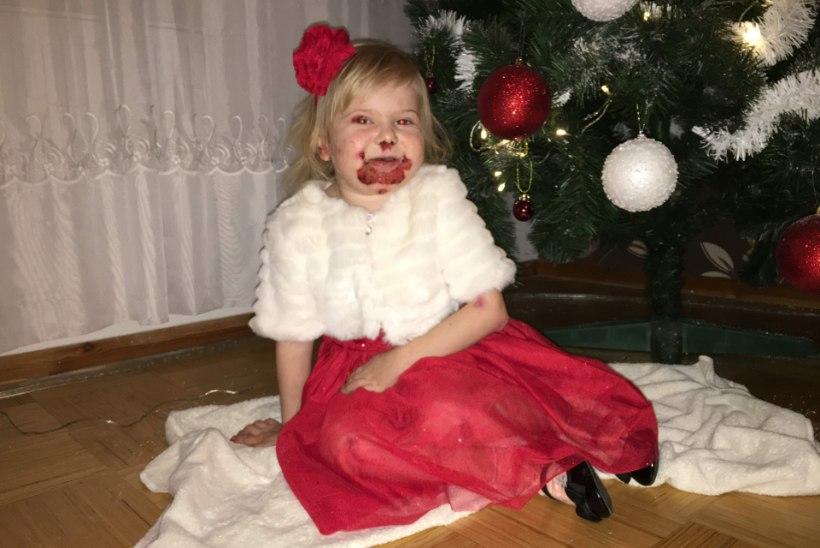 LAHTISED HAAVAD JA PIDEV LÄMBUMISOHT: nelja-aastane tüdruk põeb üliharuldast haigust, mida esineb ühel inimesel miljonist