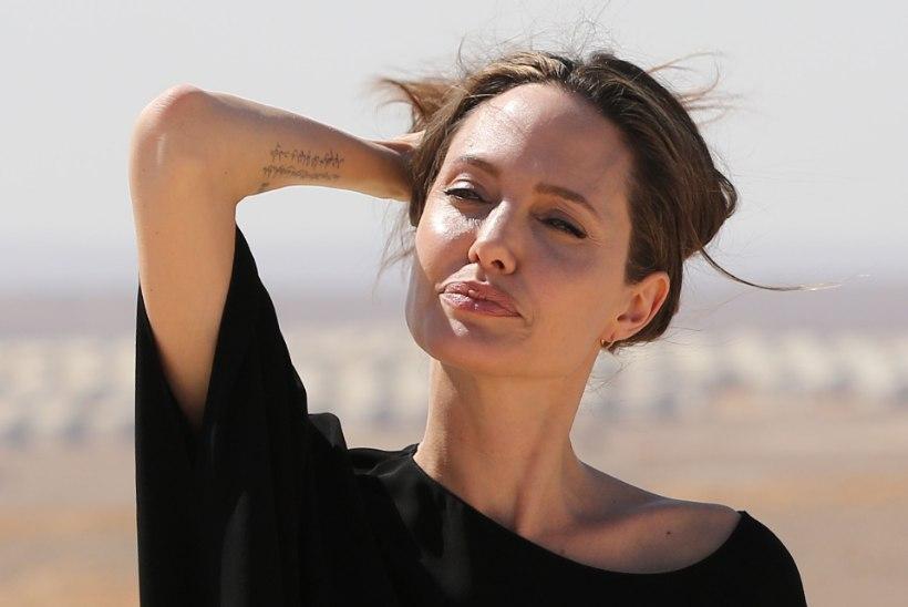 FOTOD | Ilukirurg paljastab: millisel kuulsal naisel on kõige ihaldusväärsemad huuled?