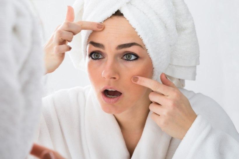 Kas punnide pigistamine on halb? Dermatoloog selgitab, miks meil tekivad vistrikud ja kuidas neid vältida