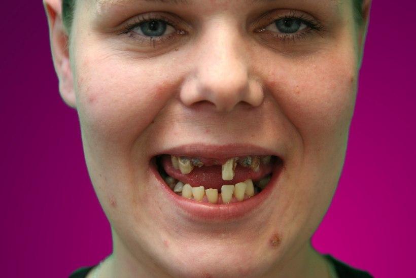 IMELINE MUUTUJA HÄLI: ämm küsis pojalt kõigi ees, kuidas too minusugust hambutut suudelda saab