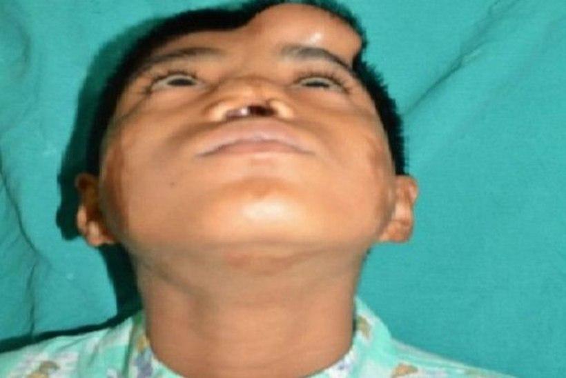 MEDITSIINI IME   India arstid kasvatasid poisi laubal talle uue nina