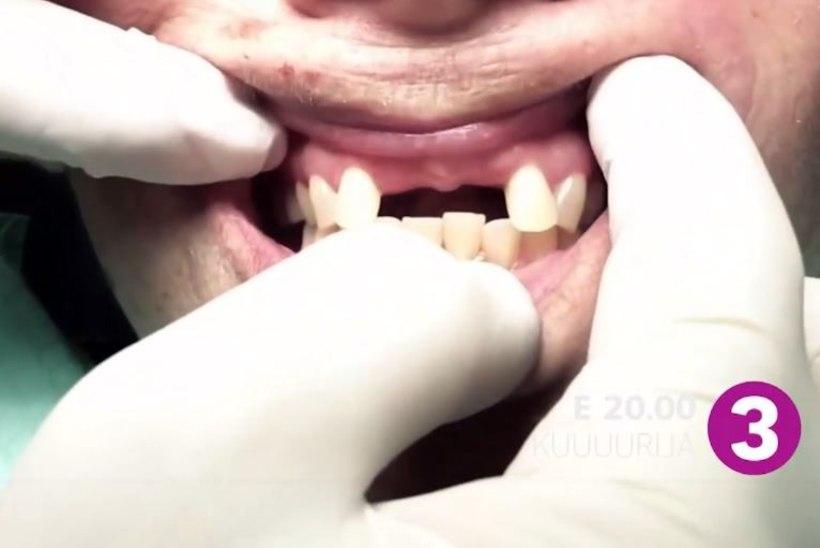 """TV3 VIDEO   """"KUUUURIJA"""": Hambahaldjas Heino Kalm teeb eestlaste hambad taskuraha eest korda!"""