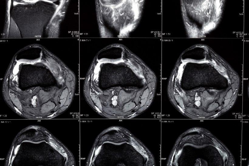 TEADLASED: peaajupõrutus teismeeas tõstab hulgiskleroosi haigestumise riski