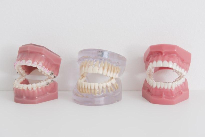 Jaanuarist kehtib haigekassa partnerite juures üle Eesti hammaste proteesidele sama hind