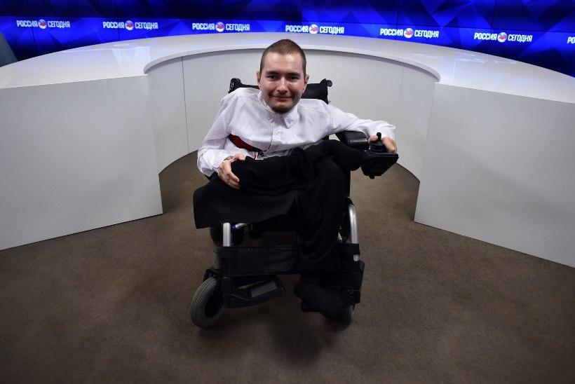 Briti leht: maailma esimene inimpea siirdamine läks korda!