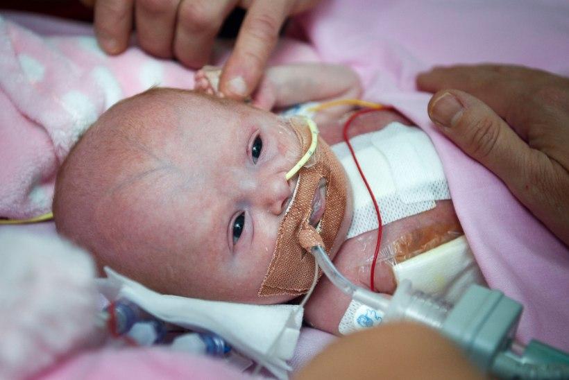 PISIKE VAPPER VÕITLEJA: beebi sündis süda väljaspool keha