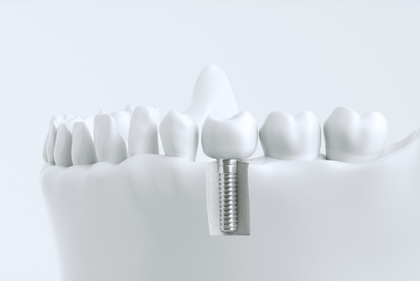 Üha rohkem eestlasi eelistab proteesidele implantaate