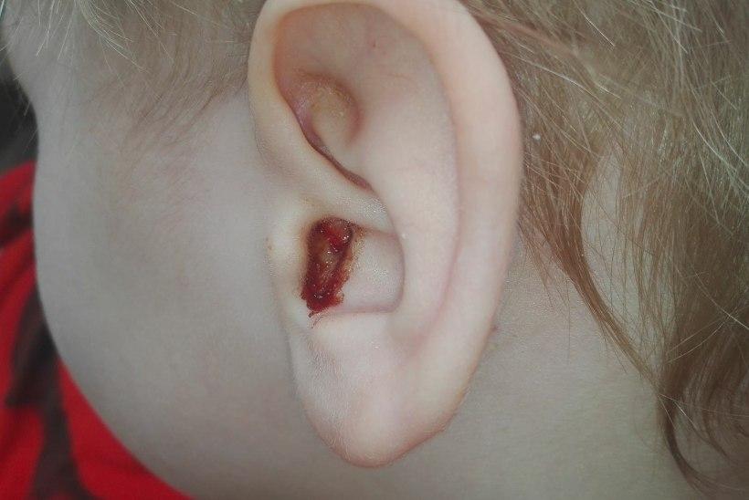 Nohust kõrvapõletikuni – haigena lasteaeda viidud lapsed nakatavad terveid mängukaaslasi