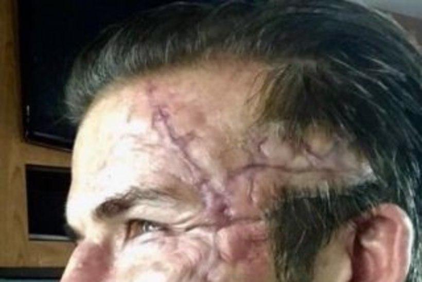 ISSAKE! Mis juhtus David Beckhami ilusa näoga?