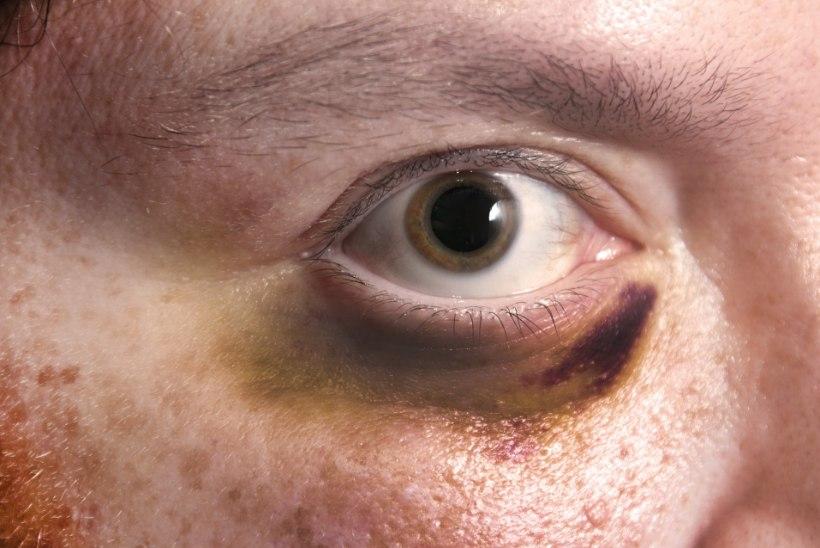 Kuidas ravida sinist silma?