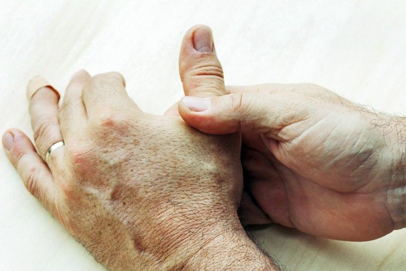 Reumatoidartriidihaigeid peaks ravima hakkama kohe pärast diagnoosi saamist