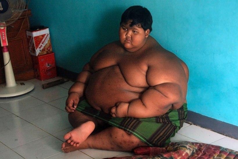 ELUOHTLIK ISU! 192 kilo kaaluv 11aastane vajas maovähendusoppi