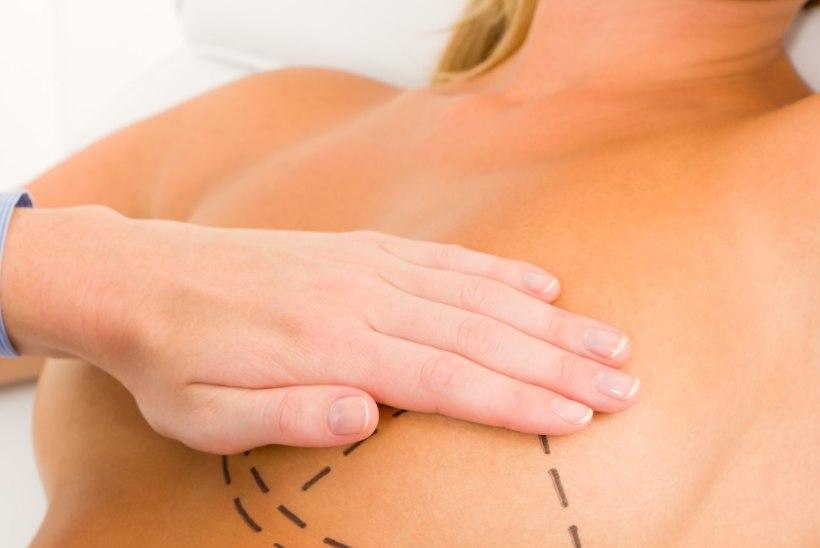 Kaheksa müüti rinnaimplantaatide kohta, mida uskuda ei maksa
