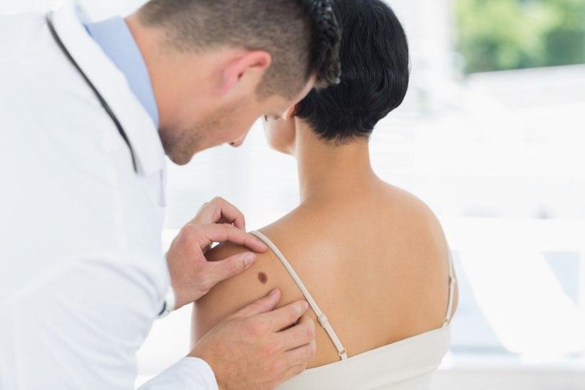 7 asja, mida iga naine oma naha kohta teadma peaks